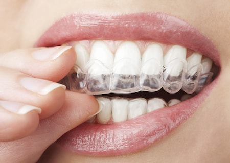 A patient puts in her custom Invisalign aligners.